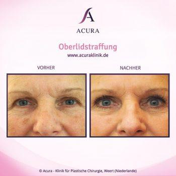Acuraklinik Weert, Vorher-Nachher-Bilder, Oberlidstraffung