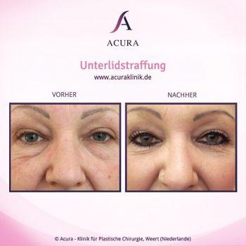 Acuraklinik Weert, Vorher-Nachher-Bilder, Unterlidstraffung