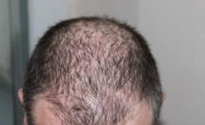 Haartransplantatie inhammen.