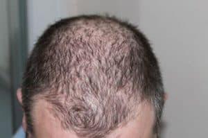 Haartransplantatie inhammen en kruin.