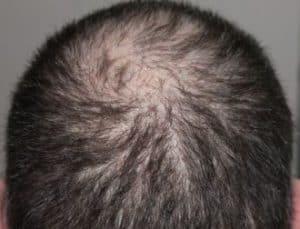 Haartransplantatie kruin.