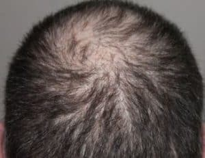 Haartransplantatie litteken voorkomen of behandelen.
