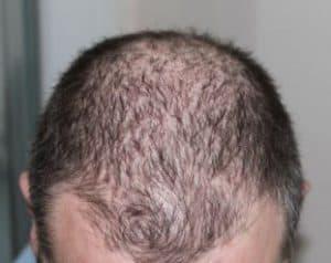 Haartransplantatie shock loss.