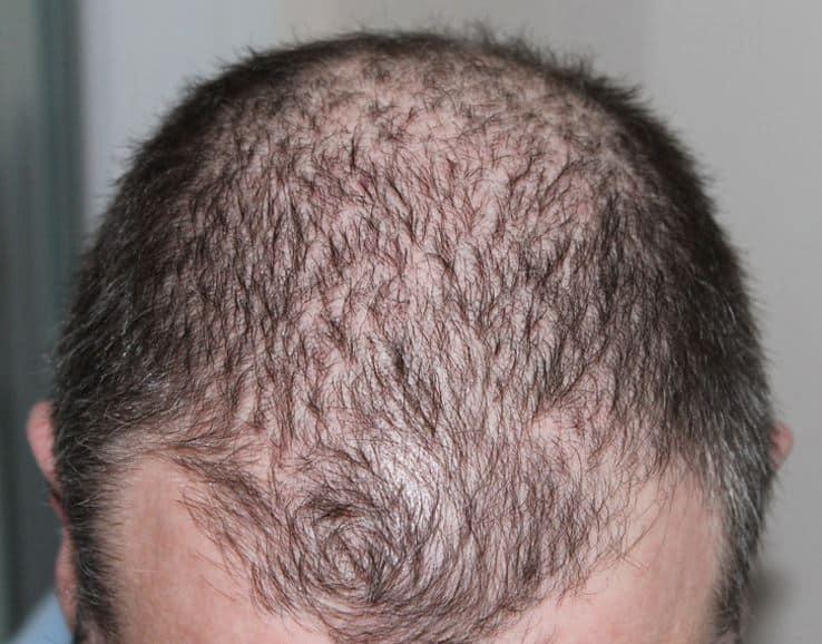 Erfelijke haaruitval.