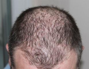Haarziekte herkennen en behandelen.
