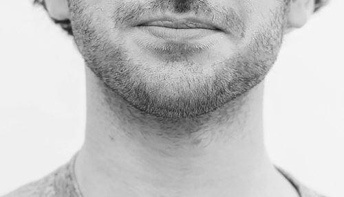 Haartransplantatie baard.