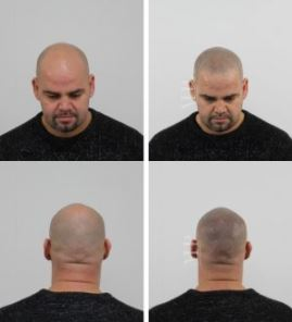 Micro hair pigmentation?