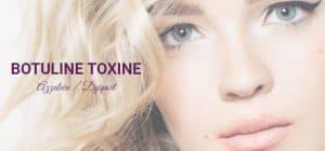Botox aanbieding?
