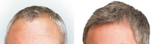 Beste haarkliniek?