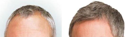 Beste haartransplantatie methode?