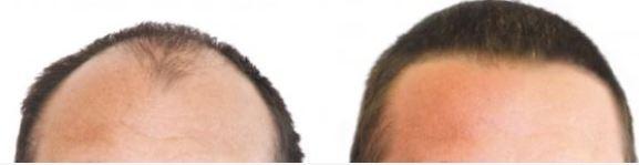 Haartransplantatie Haram?
