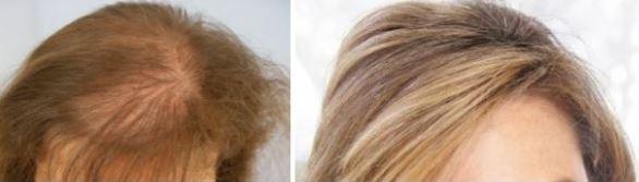 Onzichtbare haartransplantatie?