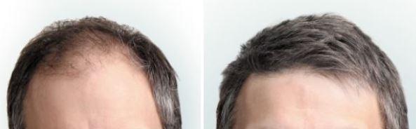 Haartransplantatie alternatief?