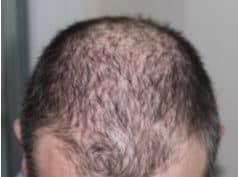 Haartransplantatie bij dun haar?