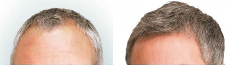 Haartransplantatie voor en na foto.