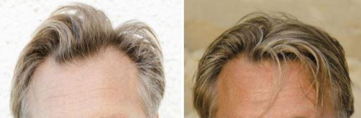 Haartransplantatie voor en na foto's.
