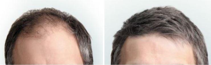 Haartransplantatie voor en na.