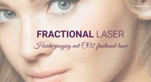 Fractional laser Nederland.
